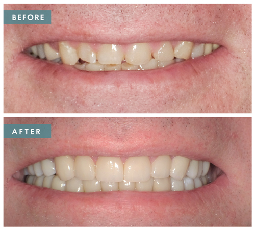 Before and after dental procedure richardson tx