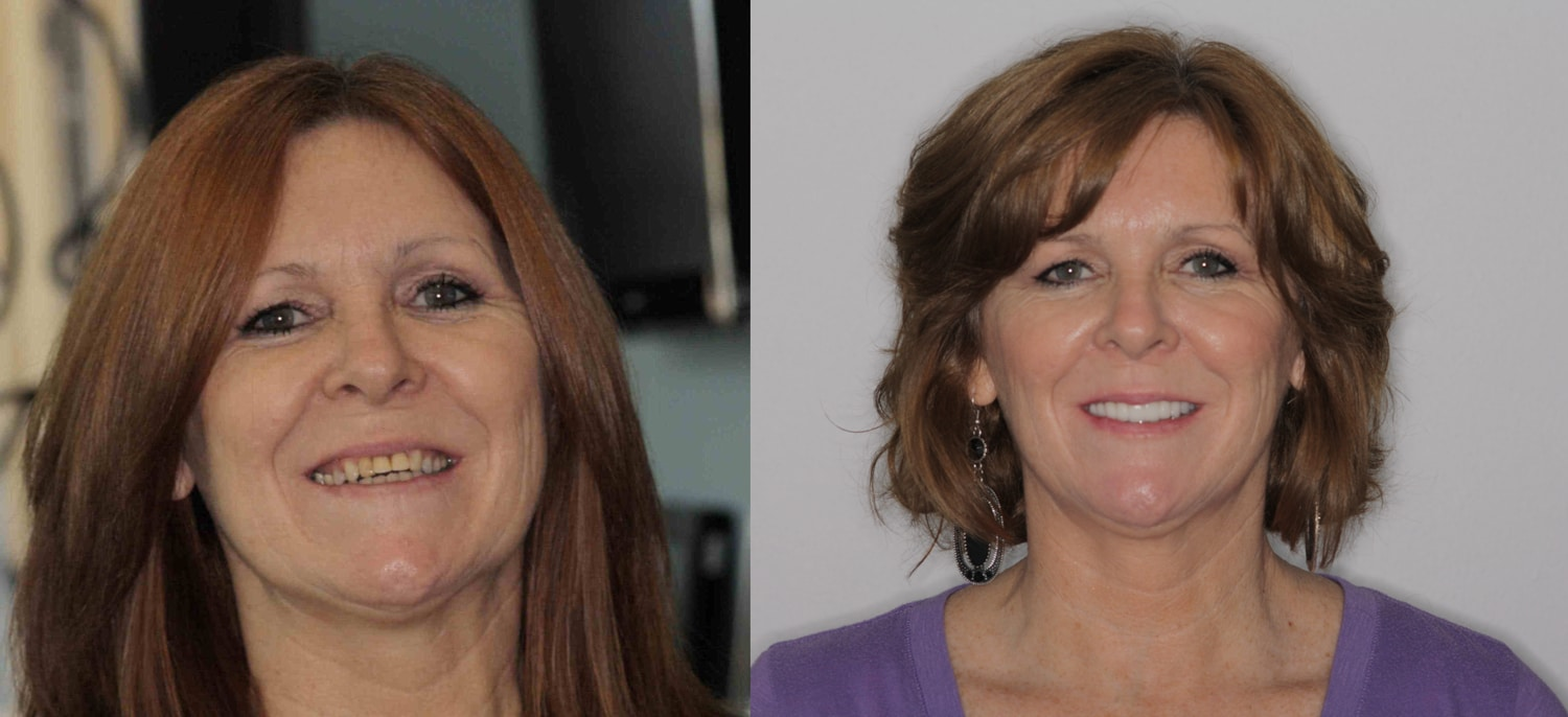before and after Couture Dentistry